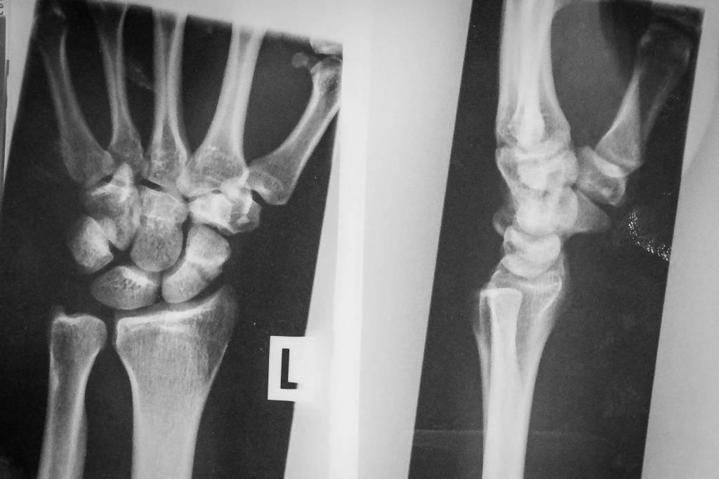 Röntgenbild Kahnbeinbruch